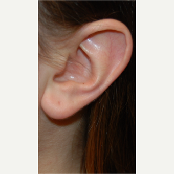 25-34 year old woman treated with Ear Lobe Reduction Surgery before 3508272