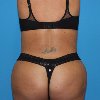 35-44 year old woman treated with Smart Lipo after 3332896