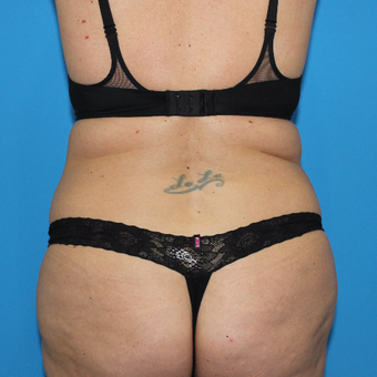 35-44 year old woman treated with Smart Lipo before 3332896