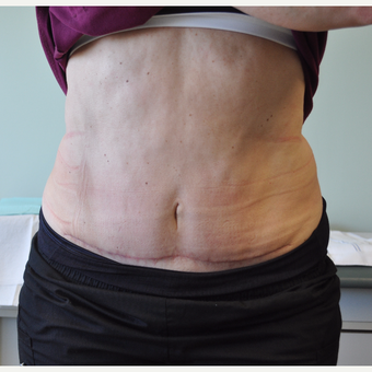 55-64 year old woman treated with Tummy Tuck after 3603224