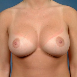 25-34 year old woman treated with Breast Augmentation after 2060473