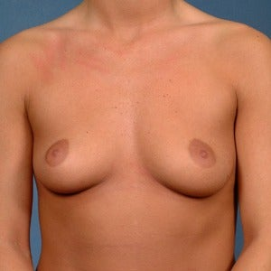 25-34 year old woman treated with Breast Augmentation before 2060473