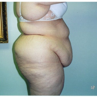 25-34 year old woman treated with Tummy Tuck before 2663432