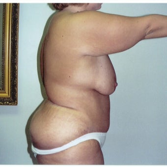 25-34 year old woman treated with Tummy Tuck after 2663432