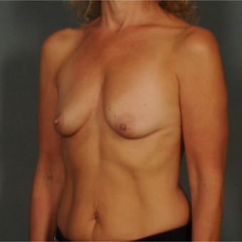 45-54 year old woman treated with Breast Implants before 3464986
