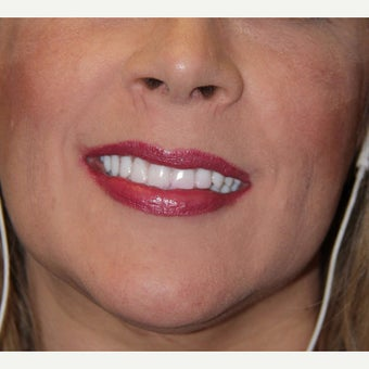 35-44 year old woman treated with All-on-4 Dental Implants after 1762339
