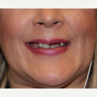 35-44 year old woman treated with All-on-4 Dental Implants before 1762339