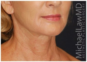 Lower Facial Rejuvenation after 1302467