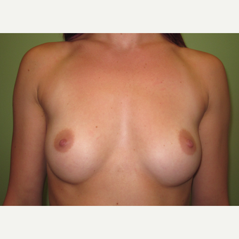 18-24 year old woman treated with Breast Implants before 3418344