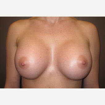 18-24 year old woman treated with Breast Implants after 3418344