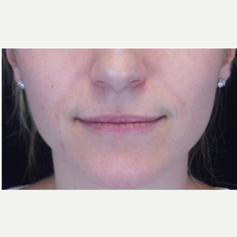 Juvederm to the lips before 3283672