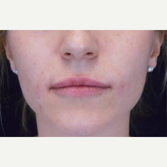 Juvederm to the lips after 3283672