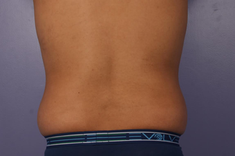 CoolSculpting before 1599503