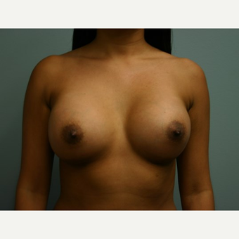 Breast Augmentation after 3562128