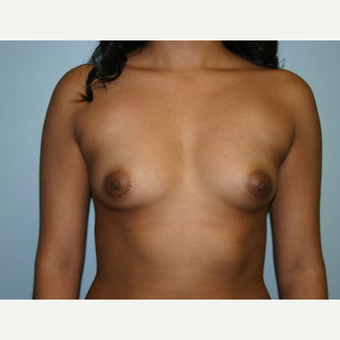 Breast Augmentation before 3562128