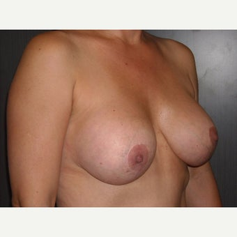 42 year old who wanted removal of her silicone gel implants 1737045