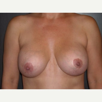 42 year old who wanted removal of her silicone gel implants before 1737045