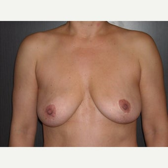 42 year old who wanted removal of her silicone gel implants after 1737045
