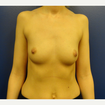 25-34 year old woman treated with Breast Implants before 3205578