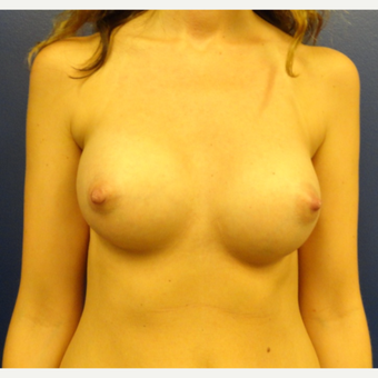 25-34 year old woman treated with Breast Implants after 3205578