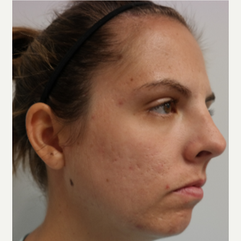 25-34 year old woman treated with Infini RF for acne and acne scars after 3059670