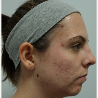 25-34 year old woman treated with Infini RF for acne and acne scars before 3059670