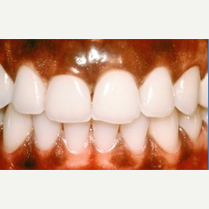25-34 year old woman treated with gum bleaching before 2465465
