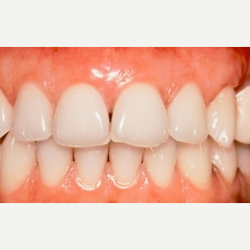 25-34 year old woman treated with gum bleaching after 2465465