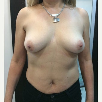 55-64 year old woman treated with Breast Lift with Implants before 1879778