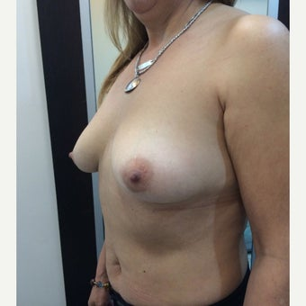 55-64 year old woman treated with Breast Lift with Implants 1879778