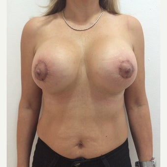 55-64 year old woman treated with Breast Lift with Implants after 1879778