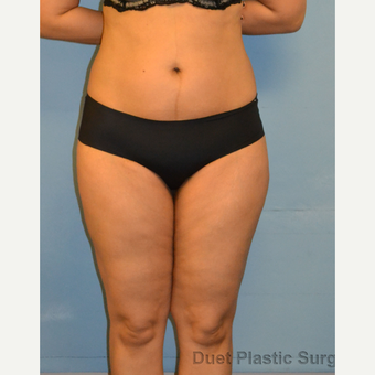 40 year old woman treated with Tumescent Liposuction of the outer thighs and lower abdomen after 3094343