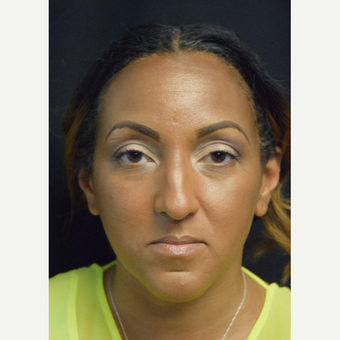 35-44 year old woman treated with African American Rhinoplasty before 3493376