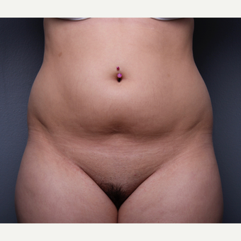 Liposuction before 3803659