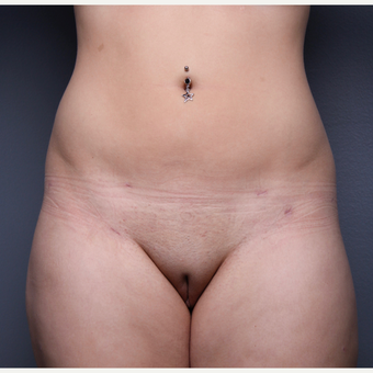 Liposuction after 3803659