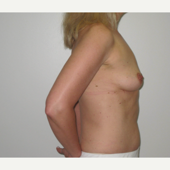 45-54 year old woman treated with Breast Implants before 3666126