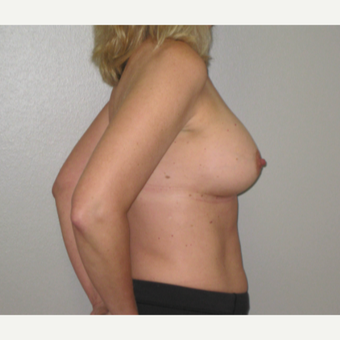 45-54 year old woman treated with Breast Implants after 3666126