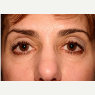 55-64 year old woman treated with Botox after 3604245