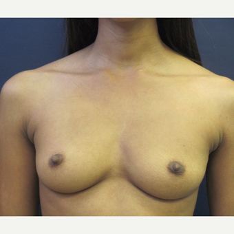 25-34 year old woman treated with Breast Augmentation before 3775555