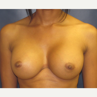 25-34 year old woman treated with Breast Augmentation after 3775555