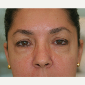 55-64 year old woman treated with Injectable Fillers after 3292684
