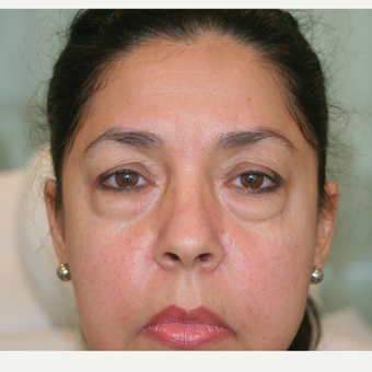 55-64 year old woman treated with Injectable Fillers before 3292684