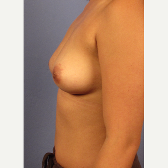 25-34 year old woman treated with Breast Augmentation before 3321593