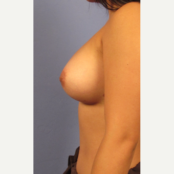 25-34 year old woman treated with Breast Augmentation after 3321593