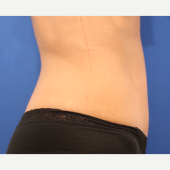 35-44 year old woman treated with Tummy Tuck after 3803793