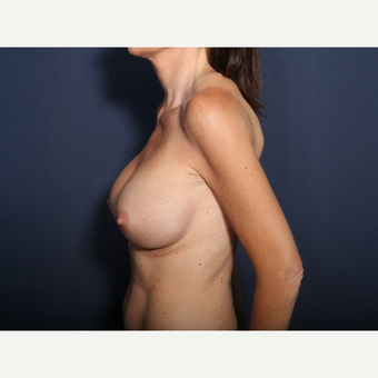 35-44 year old woman treated with Breast Implant Revision (view 2 of 2) after 3321607