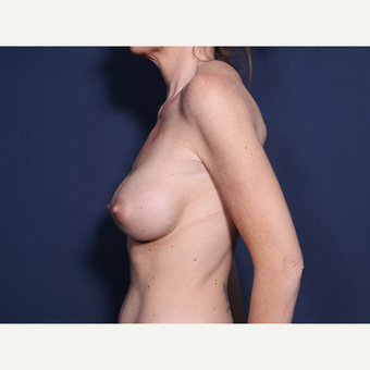 35-44 year old woman treated with Breast Implant Revision (view 2 of 2) before 3321607