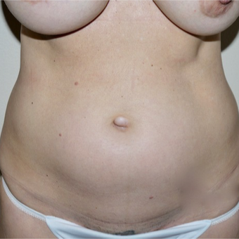 45-54 year old woman treated with Mini Tummy Tuck before 3692319