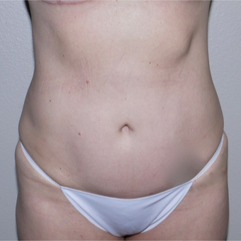 45-54 year old woman treated with Mini Tummy Tuck after 3692319