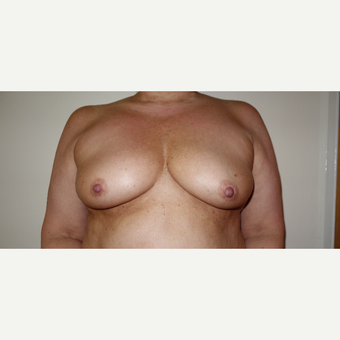 35-44 year old woman treated with Breast Augmentation before 3031287
